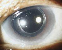 Endophthalmitis following cataract surgery in diabetic patients