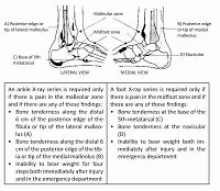 Ottawa Ankle Rules in primary care – awareness, importance and use by family physicians
