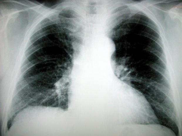 erekcja i promieniowanie rentgenowskie